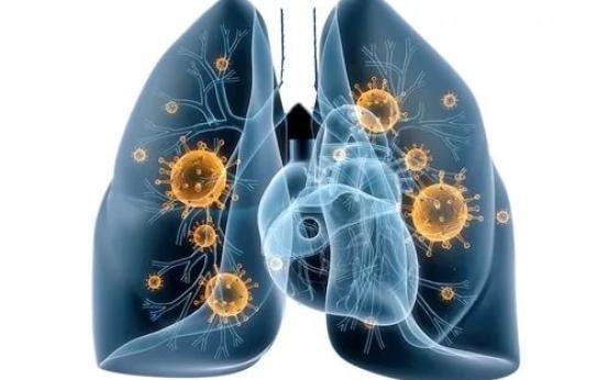 Симптомы, причины и лечение прикорневой пневмонии у детей