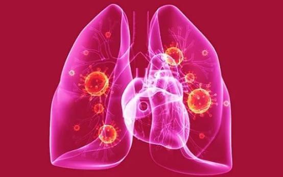 В чем опасность двухсторонней пневмонии и как долго ее лечить