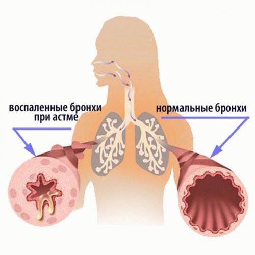 Схема здоровых и больных бронхов