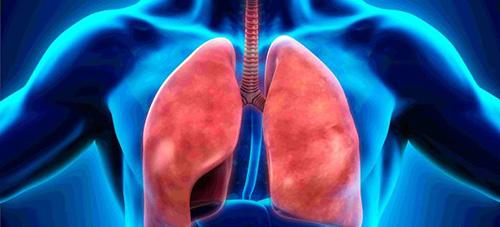 пневмония рентген