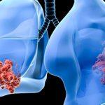 Средства от кашля при онкологии