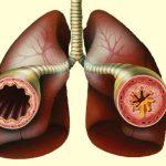 бронхит гомеопатия