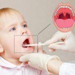 Кашель при аденоидах у детей лечение