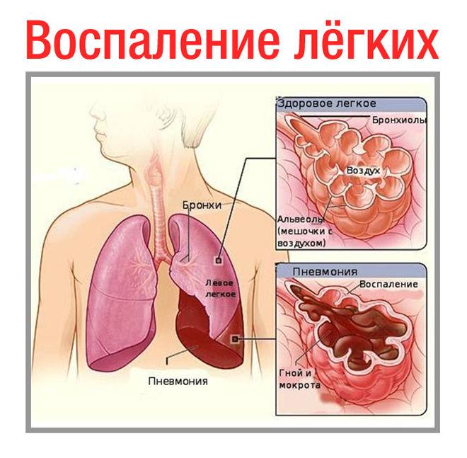 Воспалении легких