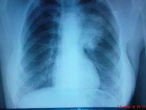 Рентген, левостороннее поражение