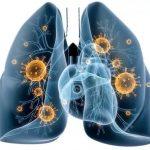 Прикорневая пневмония у детей