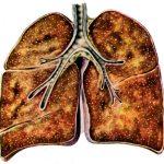 Последствия туберкулеза