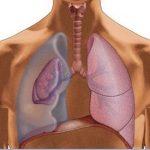 Поддувка легких при туберкулезе