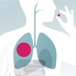 Таблетки для профилактики туберкулеза