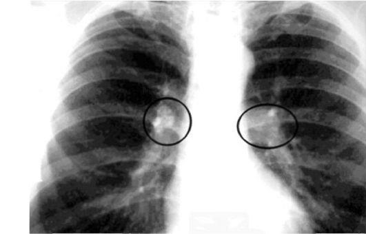 Снимок грудной клетки