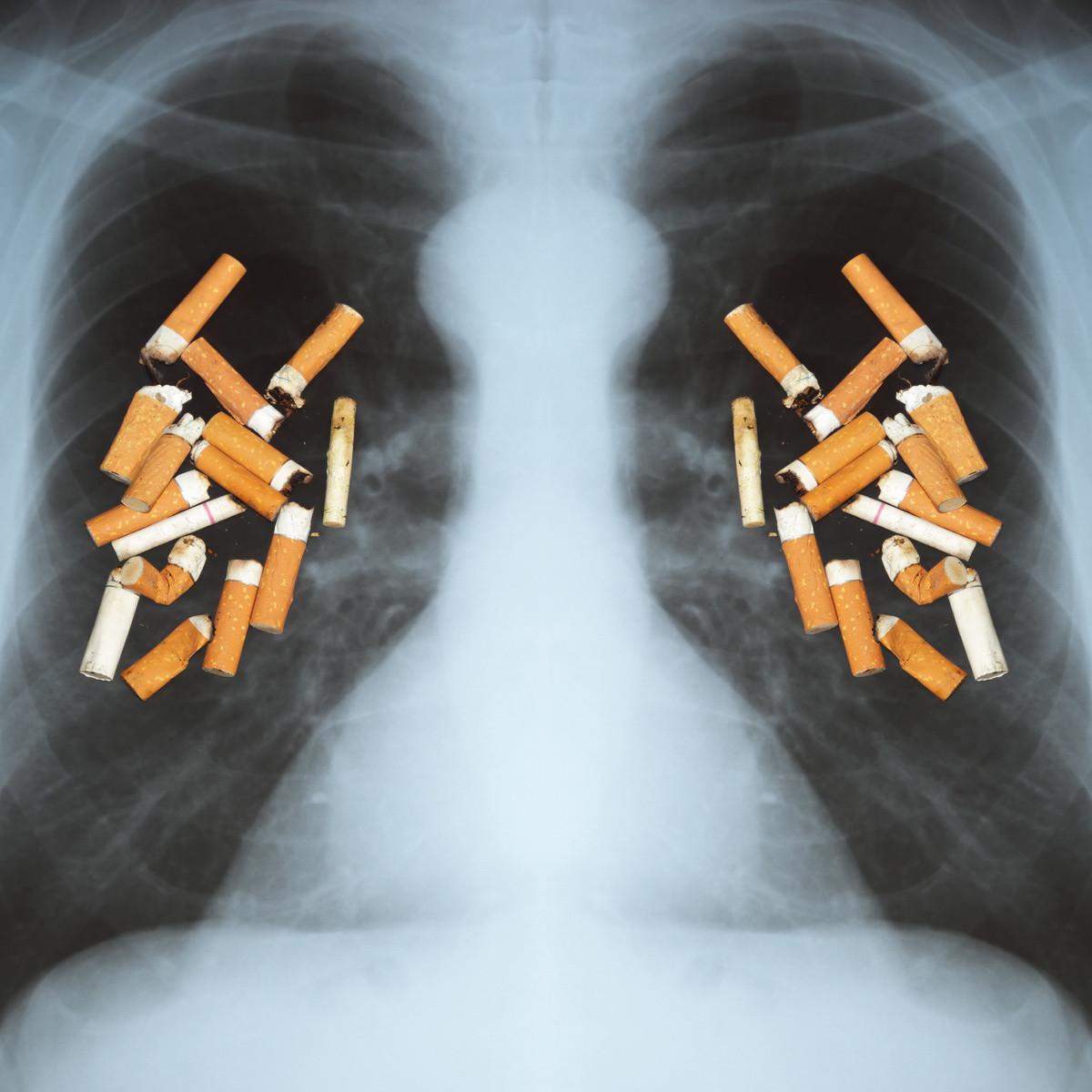 Сигаретные окурки