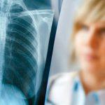Подозрение на туберкулез что делать