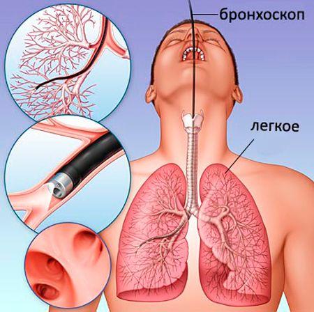 Бронхоскопия при туберкулезе легких