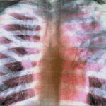 Латентная туберкулезная инфекция