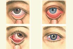 Туберкулез глаз