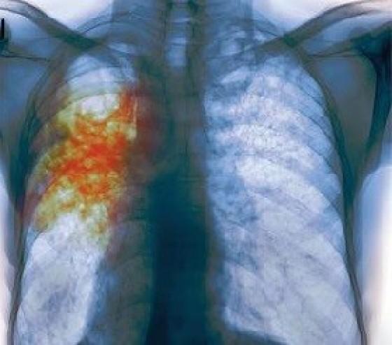 При туберкулезе может болеть бок thumbnail