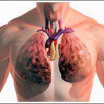 Болят ли легкие при туберкулезе