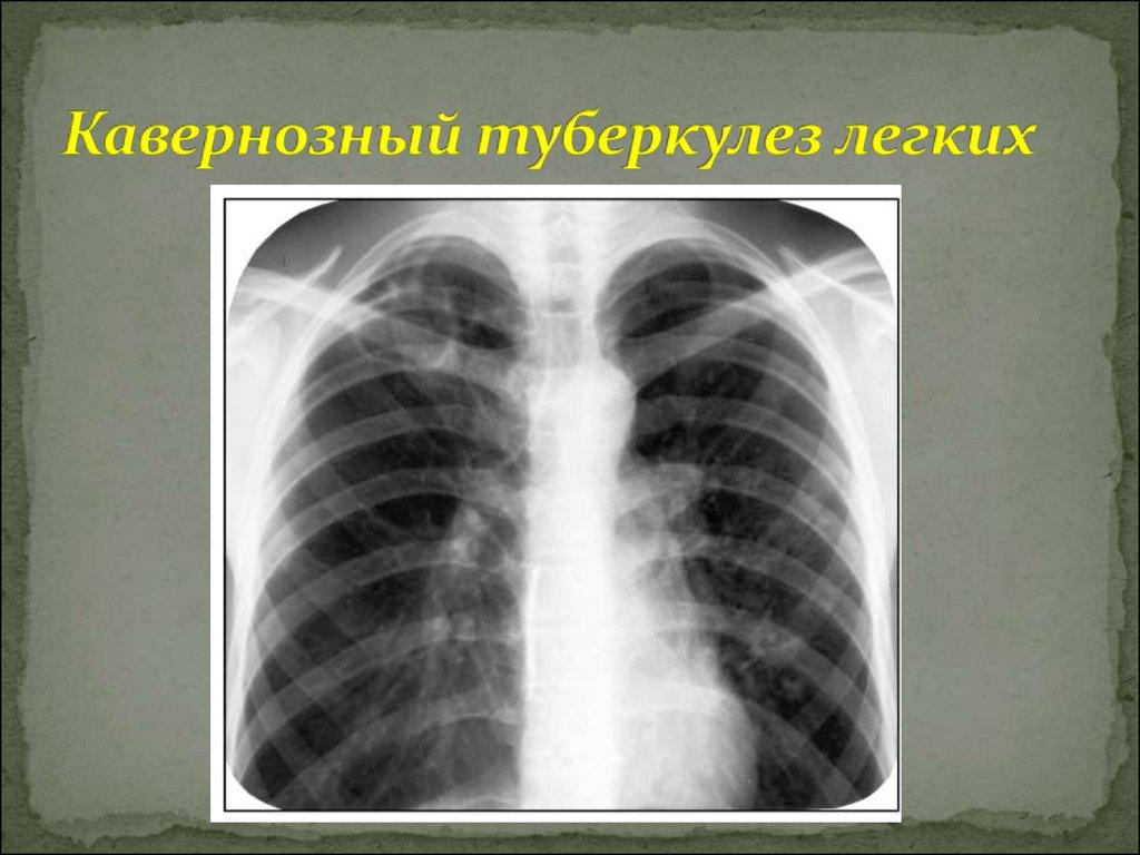 Каверозный туберкулез легких