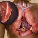 ГДУ туберкулез