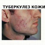 Туберкулез кожи