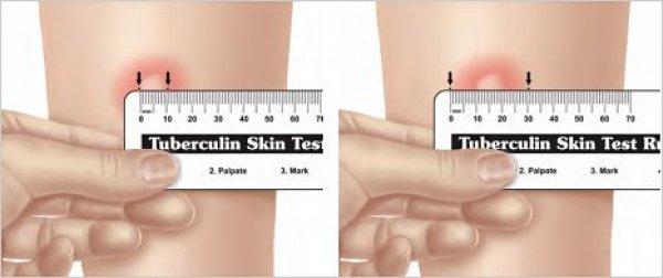 Измерение прививки