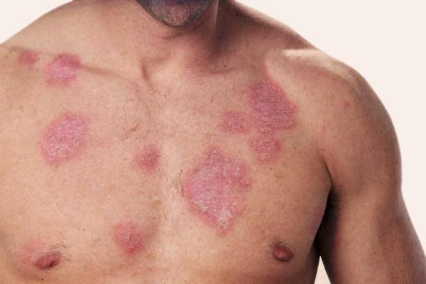 Папулонекротический туберкулез
