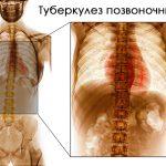 Туберкулез позвоночника