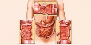 Рак боршнойьполости