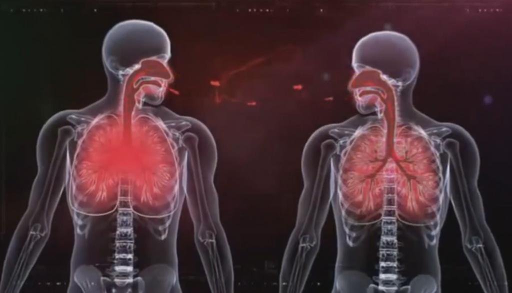 Инфицирование туберкулезом