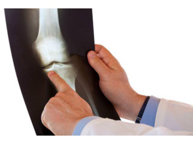 Снимок кости