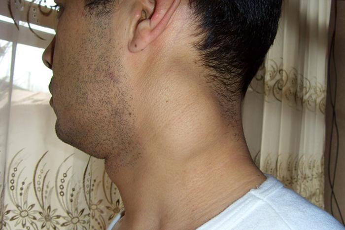 Туберкулёз лимфатических узлов